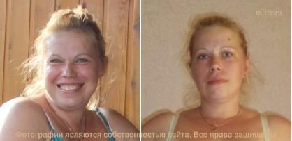 гербалайф до и после