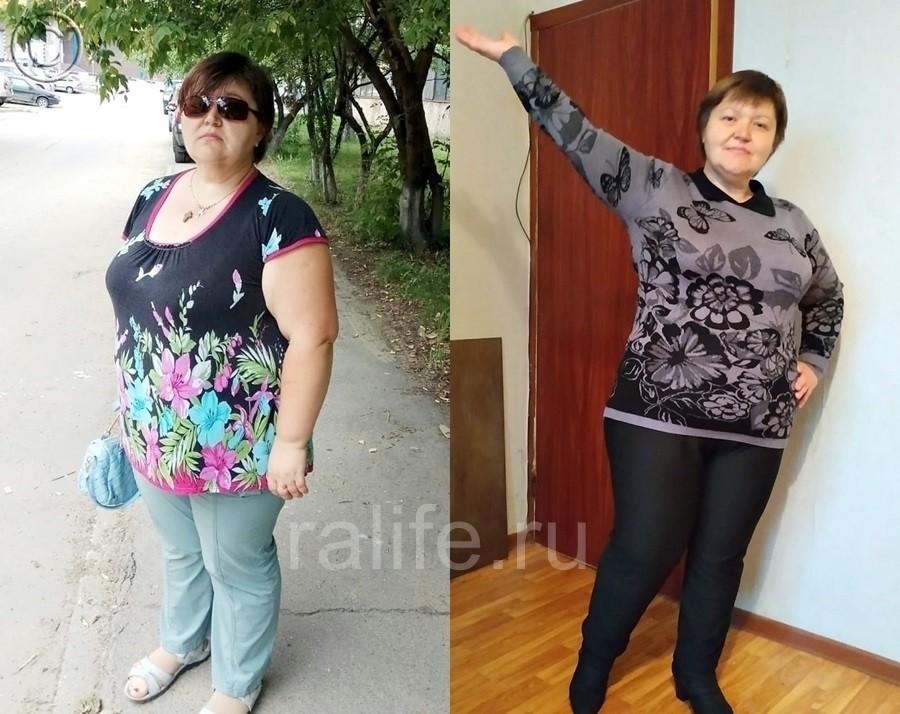 Вес уходит постепенно, и кожа успевает подтянуться